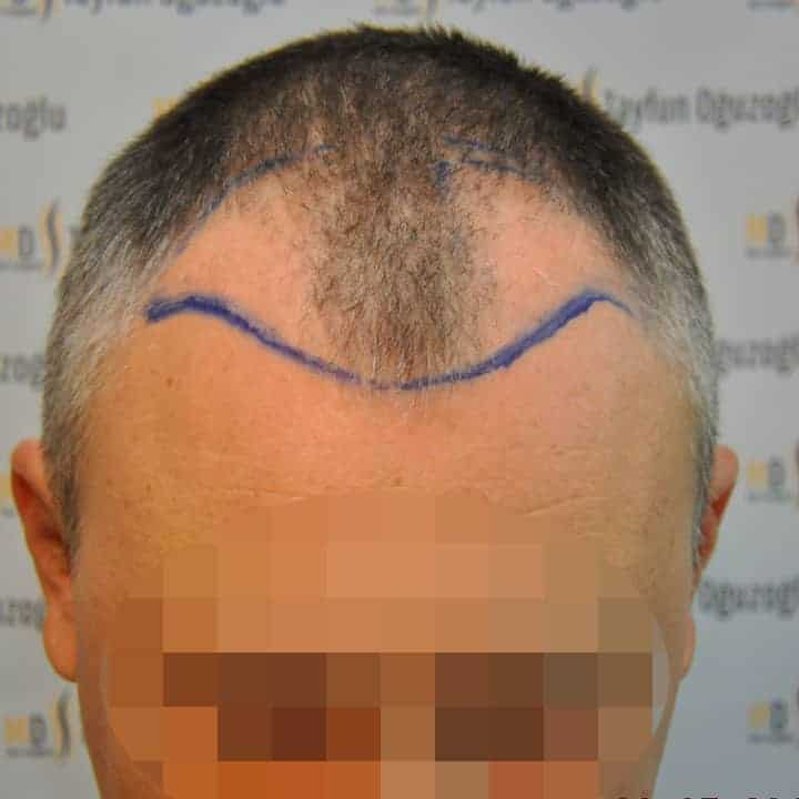 Cost Of Hair Transplant In Turkey Gethair