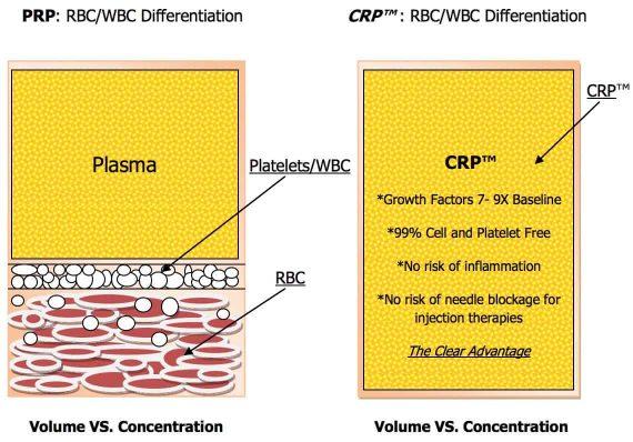 CRP vs PRP