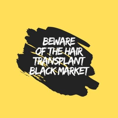 beware-of-the-hair-transplant-black-market
