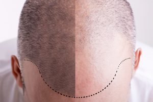 hair loss surgeries