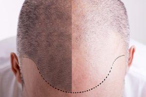 hair loss surgeries