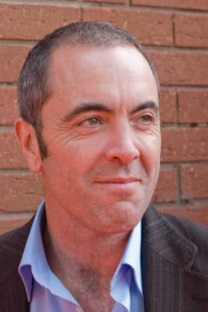celebrity hair transplant James Nesbitt 2008