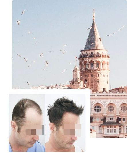 why hair transplant cheaper in turkey